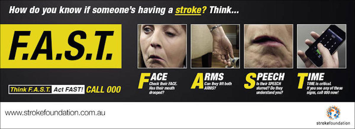 How-to-know-when-someone-is-having-a-stroke
